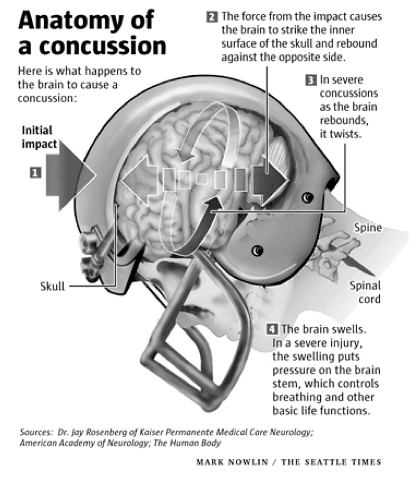 Brain Injuries On and Off the Football Field